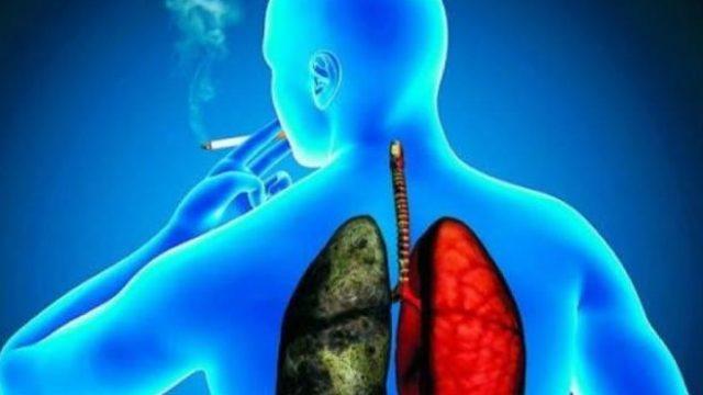 https://www.enlacecritico.com/wp-content/uploads/2020/07/Cancer-pulmon-640x360.jpg